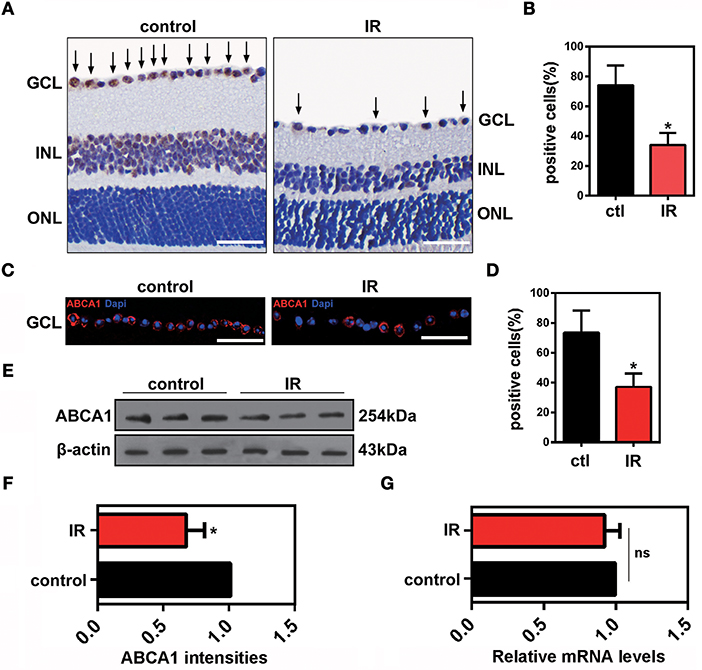 Frontiers | Reduced Annexin A1 Secretion by ABCA1 Causes Retinal