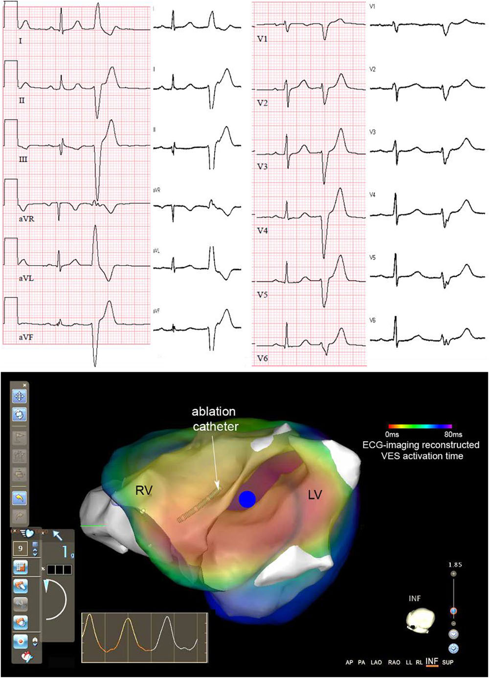 Frontiers Validation And Opportunities Of Electrocardiographic Complete Ecg Circuit Diagram With Virtual Ground