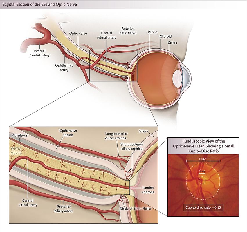 Frontiers | Update on Perioperative Ischemic Optic Neuropathy ...