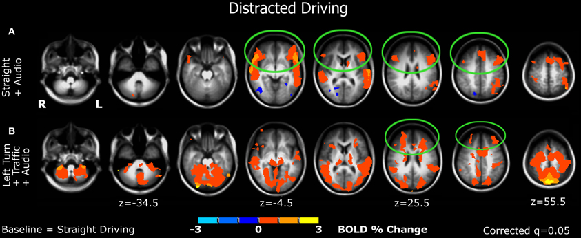 Frontiers | Brain activity during driving with distraction