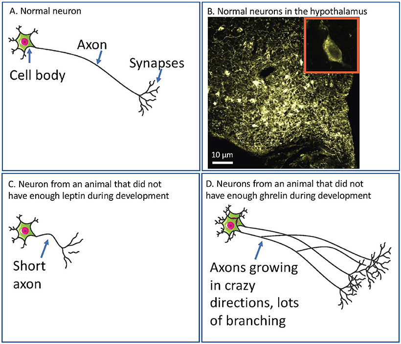 Figure 1 - (A) A diagram of a normal neuron.