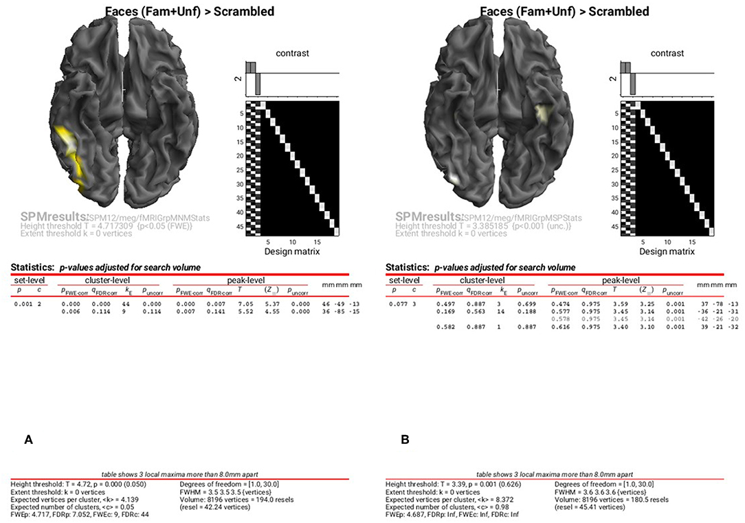 Frontiers | Multimodal Integration of M/EEG and f/MRI Data in SPM12