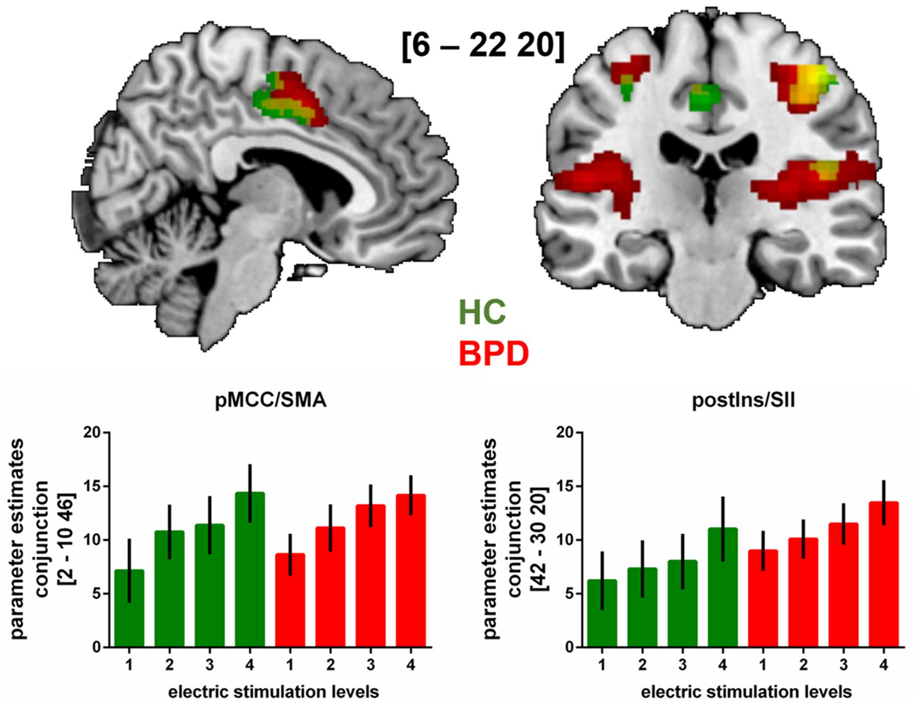 Frontiers   Somatosensory Stimulus Intensity Encoding in Borderline