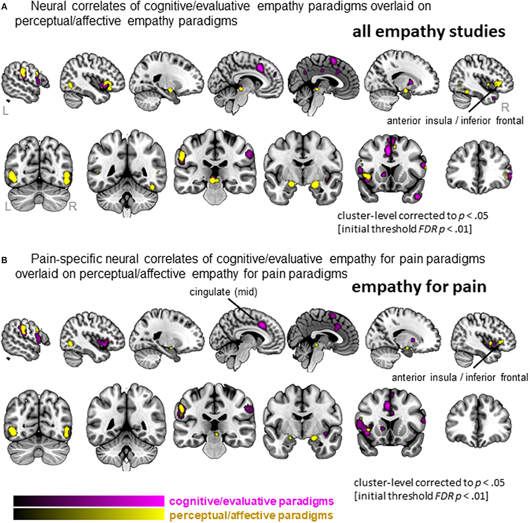 Frontiers | Is Empathy for Pain Unique in Its Neural Correlates? A