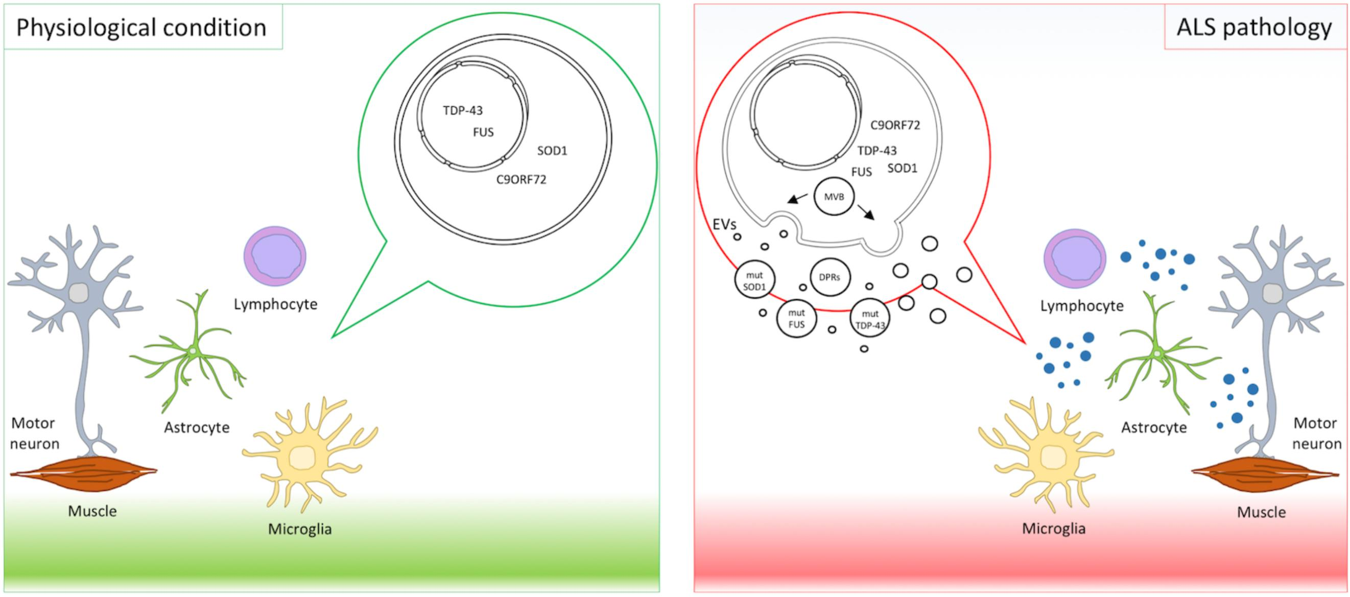 Frontiers role of extracellular vesicles in amyotrophic lateral frontiersin ccuart Image collections