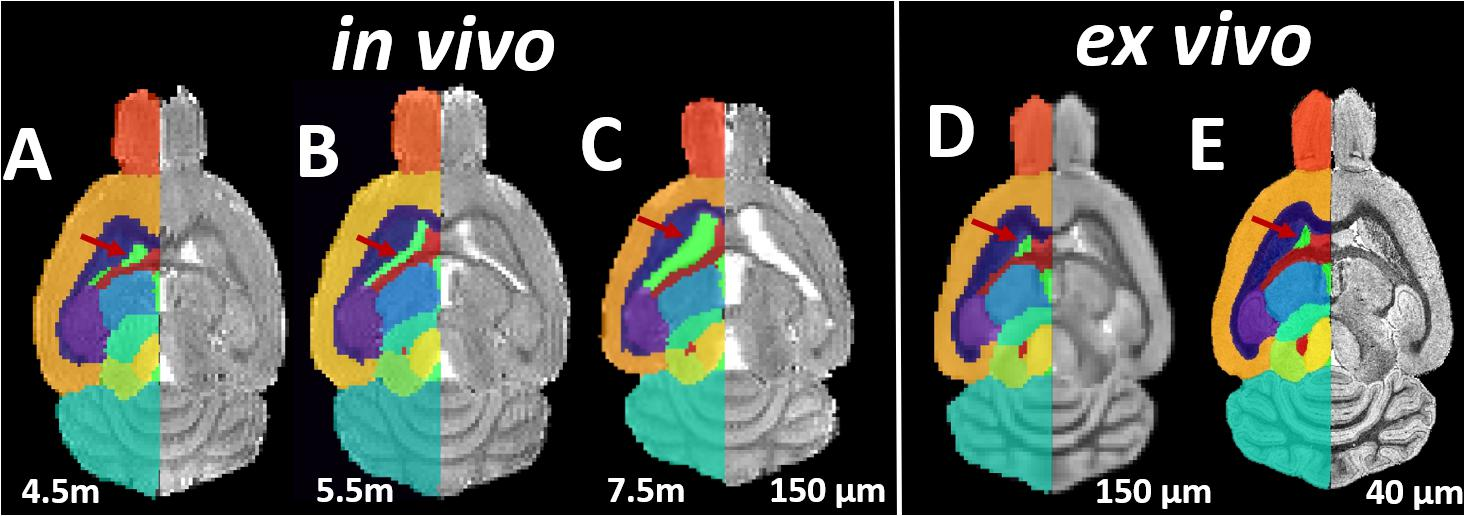 Five Ways In Which Postmortem Brain >> Frontiers Study The Longitudinal In Vivo And Cross Sectional Ex