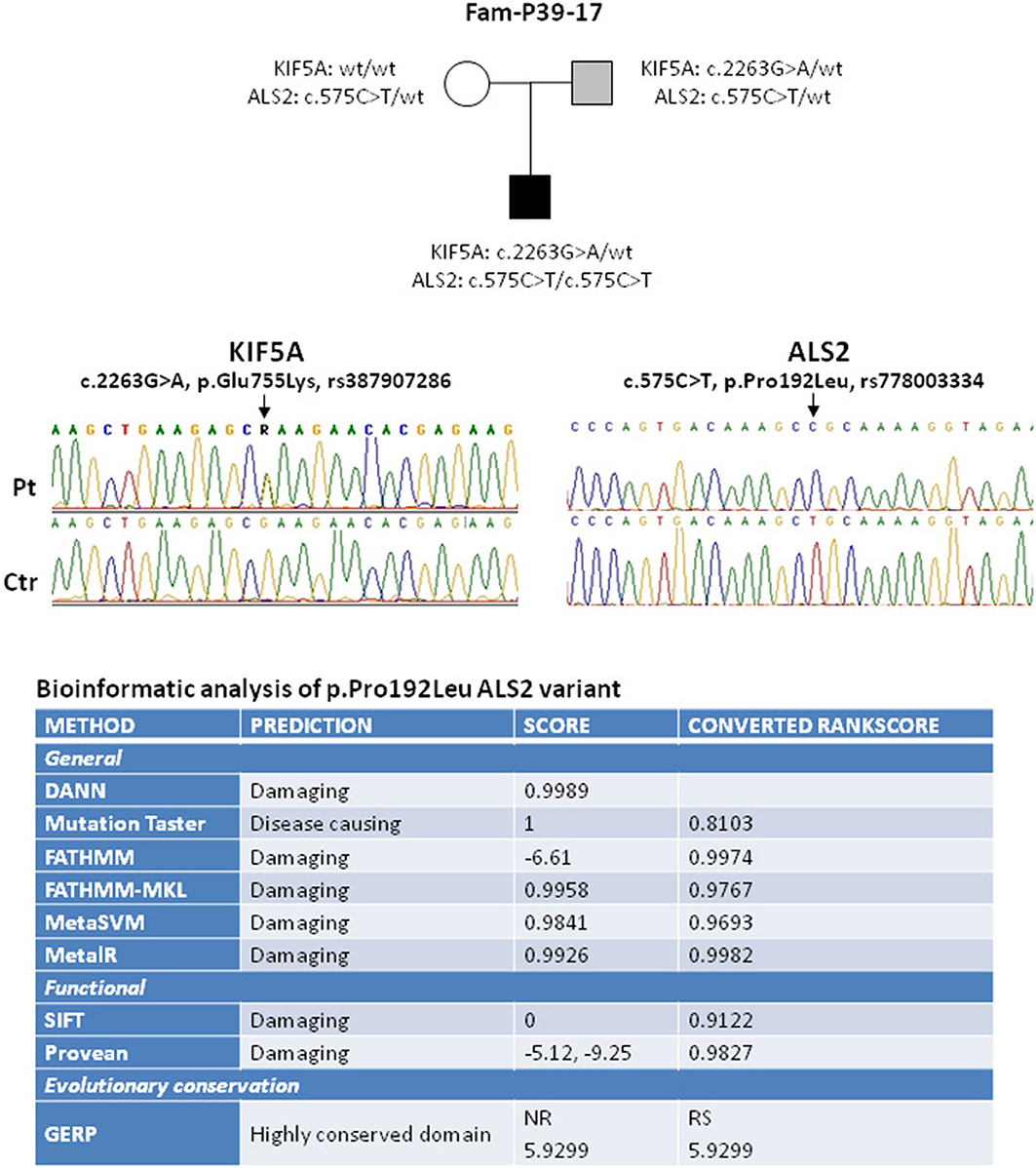 Frontiers | KIF5A and ALS2 Variants in a Family With
