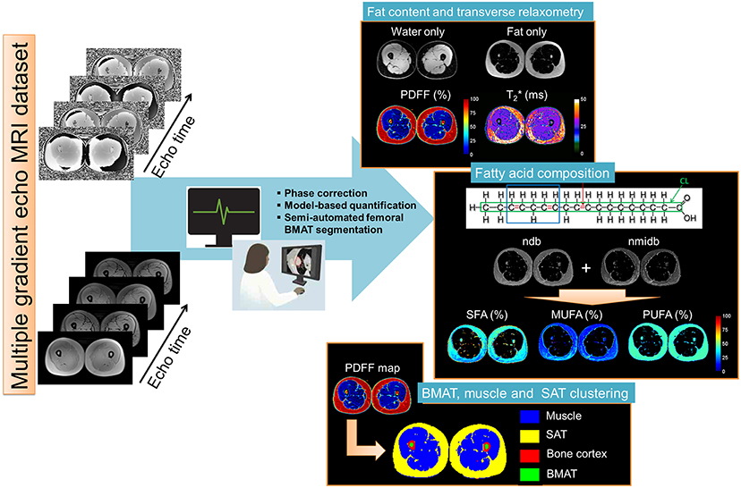 Frontiers | Chemical-Shift-Encoded Magnetic Resonance Imaging and