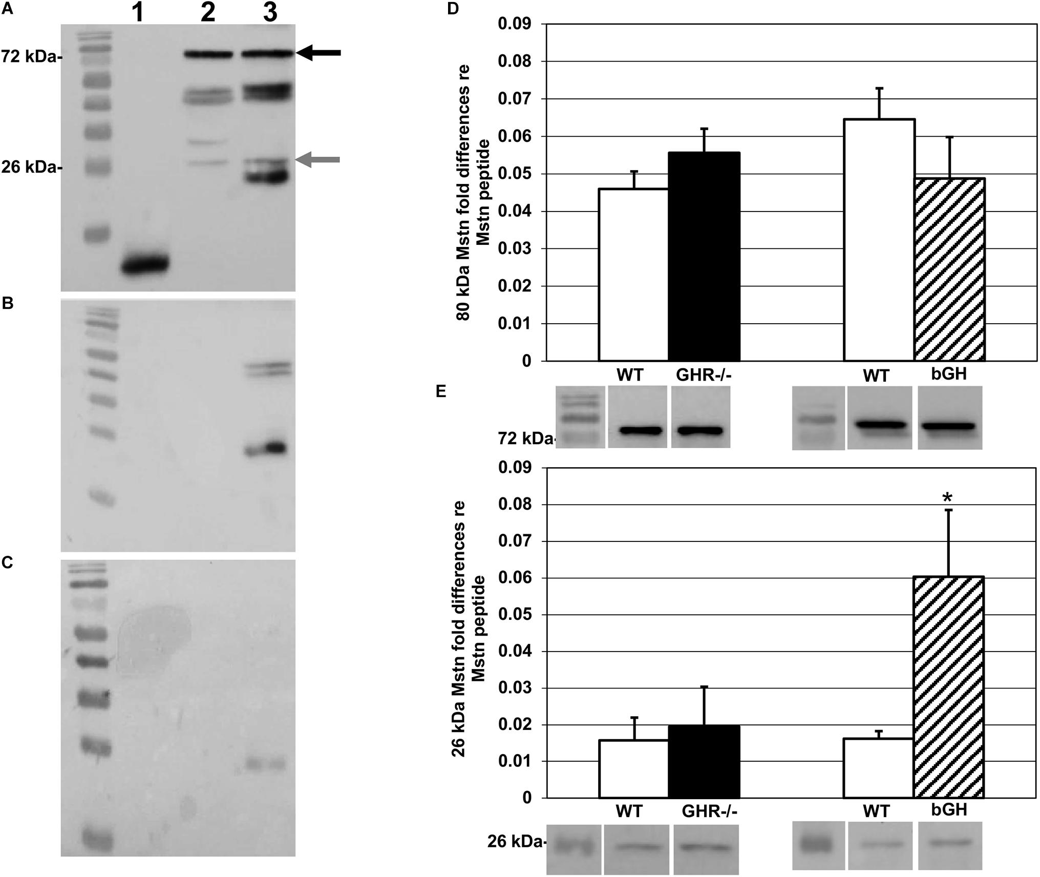 Relative Contributions Of Myostatin And The GH