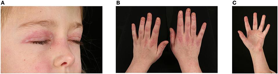 Frontiers | The Vasculopathy of Juvenile Dermatomyositis ...