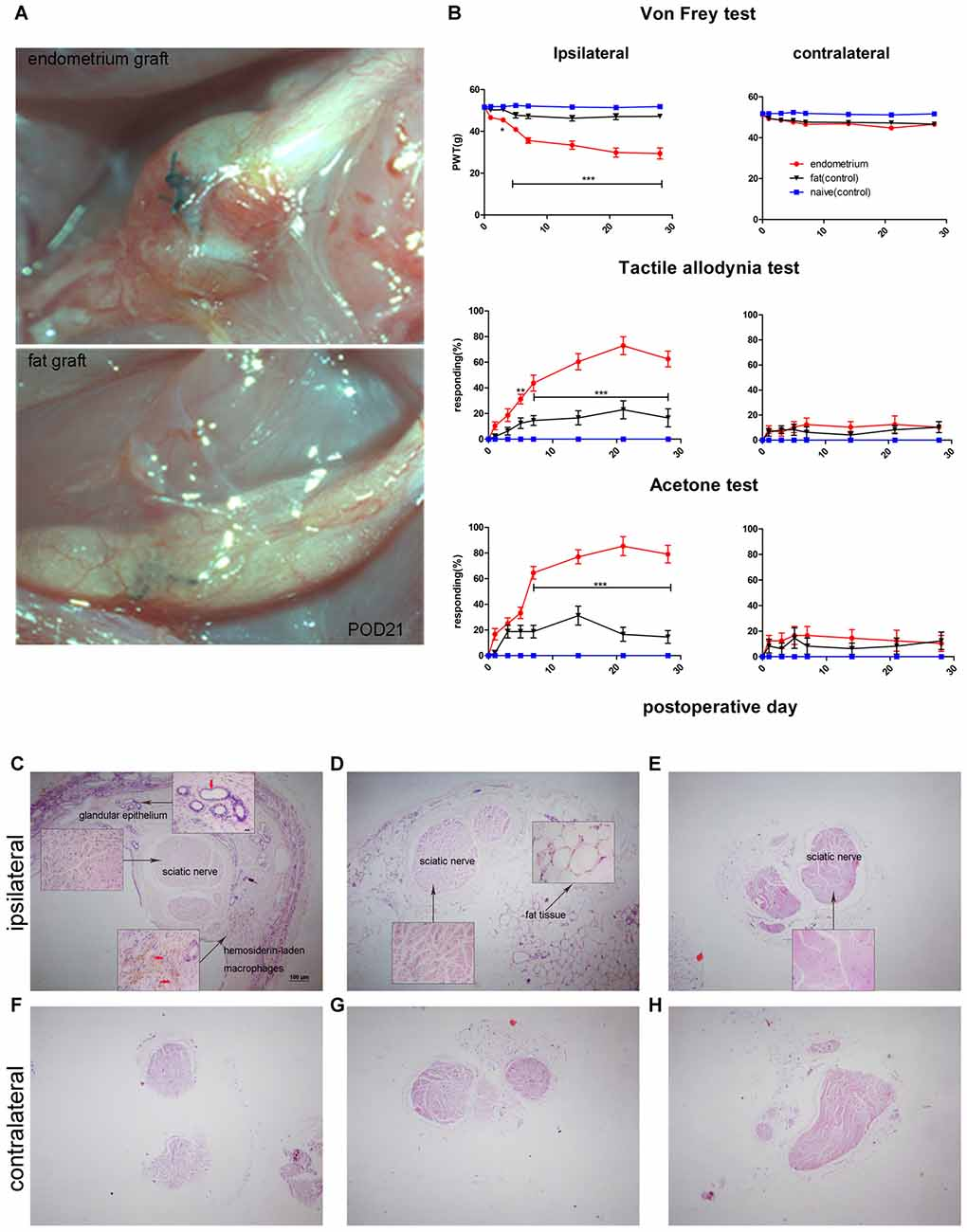 Frontiers | Fractalkine/CX3CR1 Contributes to Endometriosis