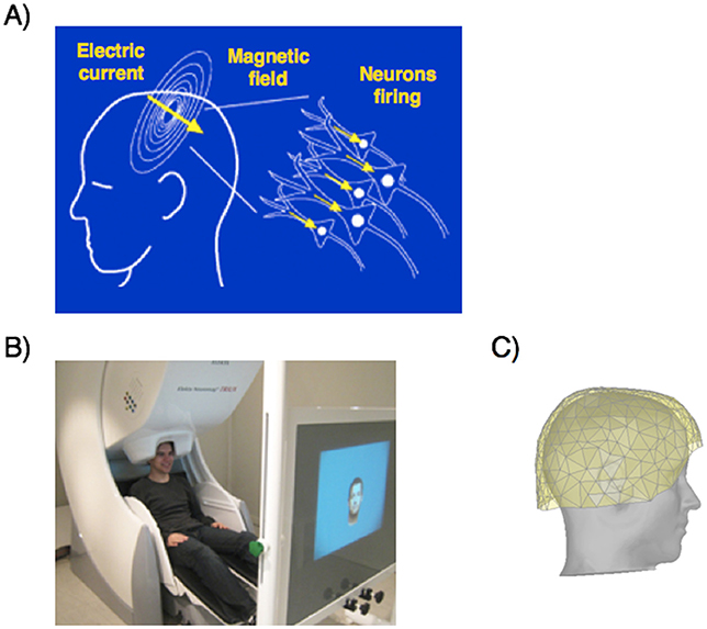 Figure 2 - (A) MEG measures brain activity by detecting the change in magnetic field produced by millions of brain cells (neurons) firing at the same time.
