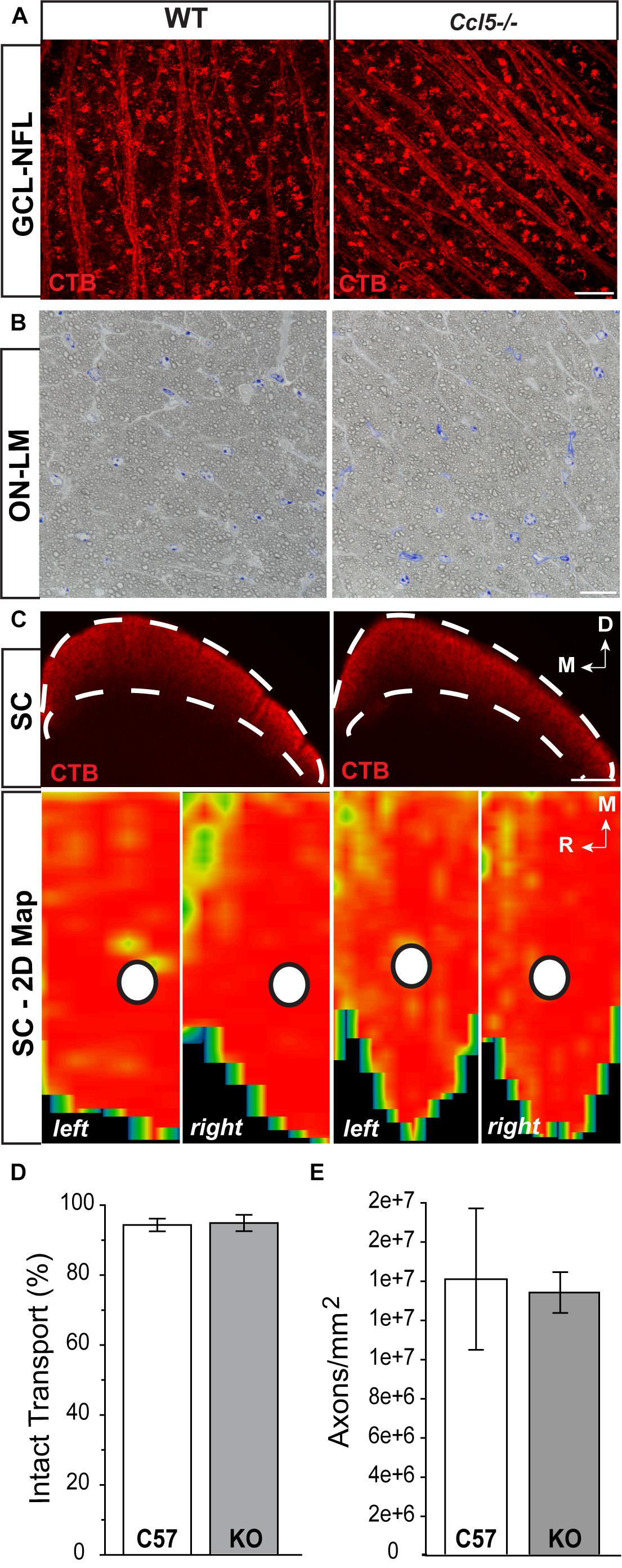 Frontiers Ccl5 Mediates Proper Wiring Of Feedforward And Lateral Silver Retina