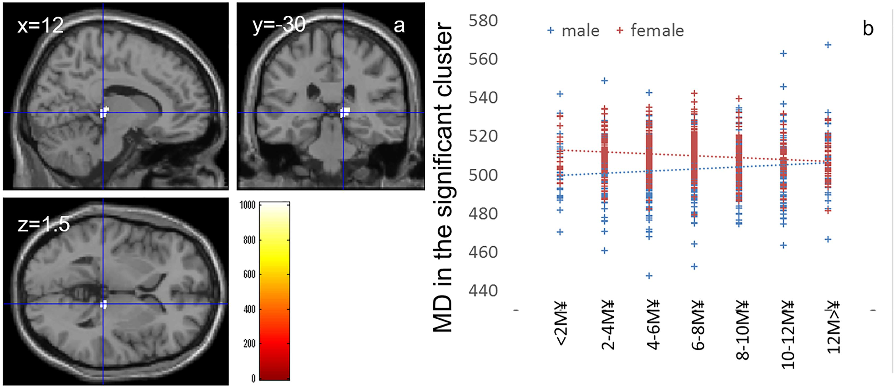Brain Scans Reveal How Poverty Hurts >> Frontiers The Effects Of Family Socioeconomic Status On
