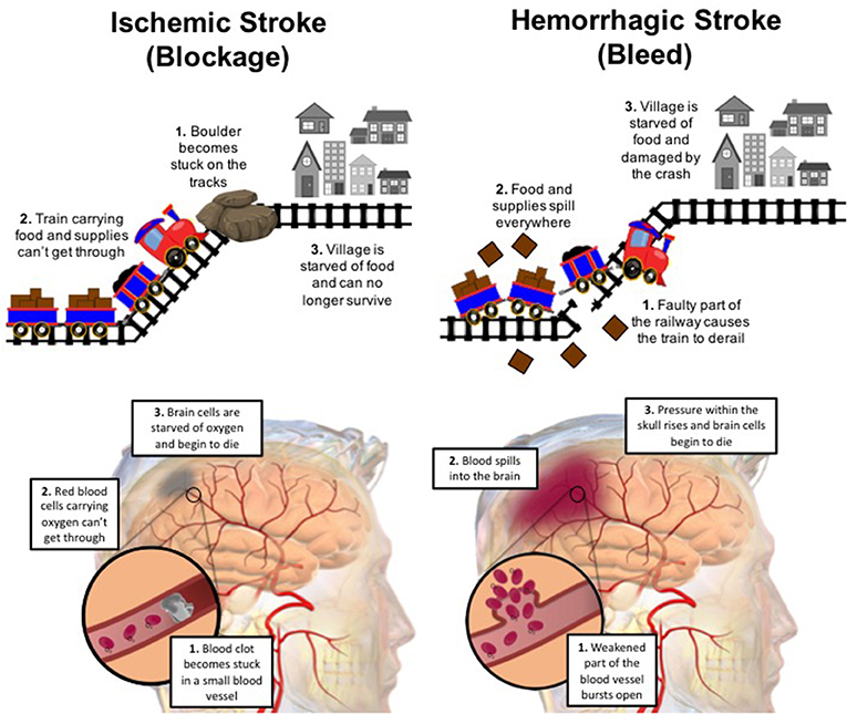 Figure 1 - There are two ways that a stroke can occur.