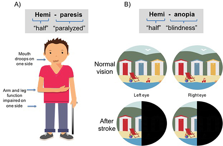 Figure 3 - Two common impairments after a stroke are shown.