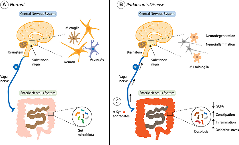 Parkinsons Disease Progression >> Frontiers | Outside in: Unraveling the Role of ...