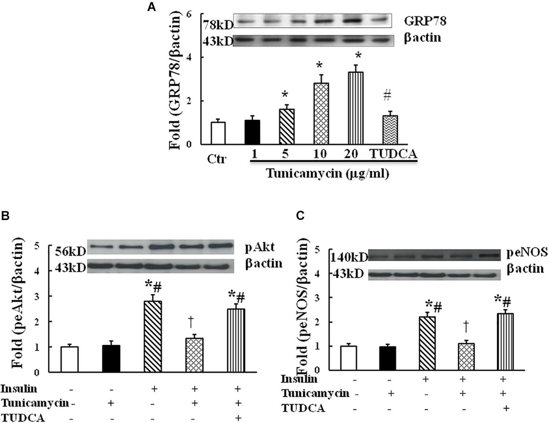 Frontiers   Resistin-Induced Endoplasmic Reticulum Stress