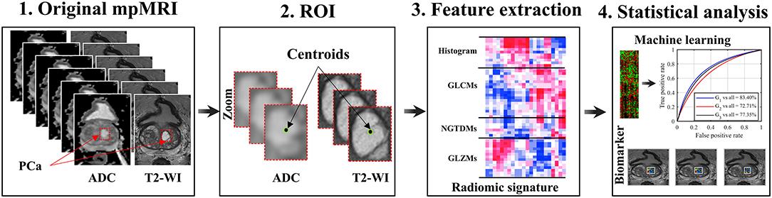 carcinoma prostatico gleason 4 5 0