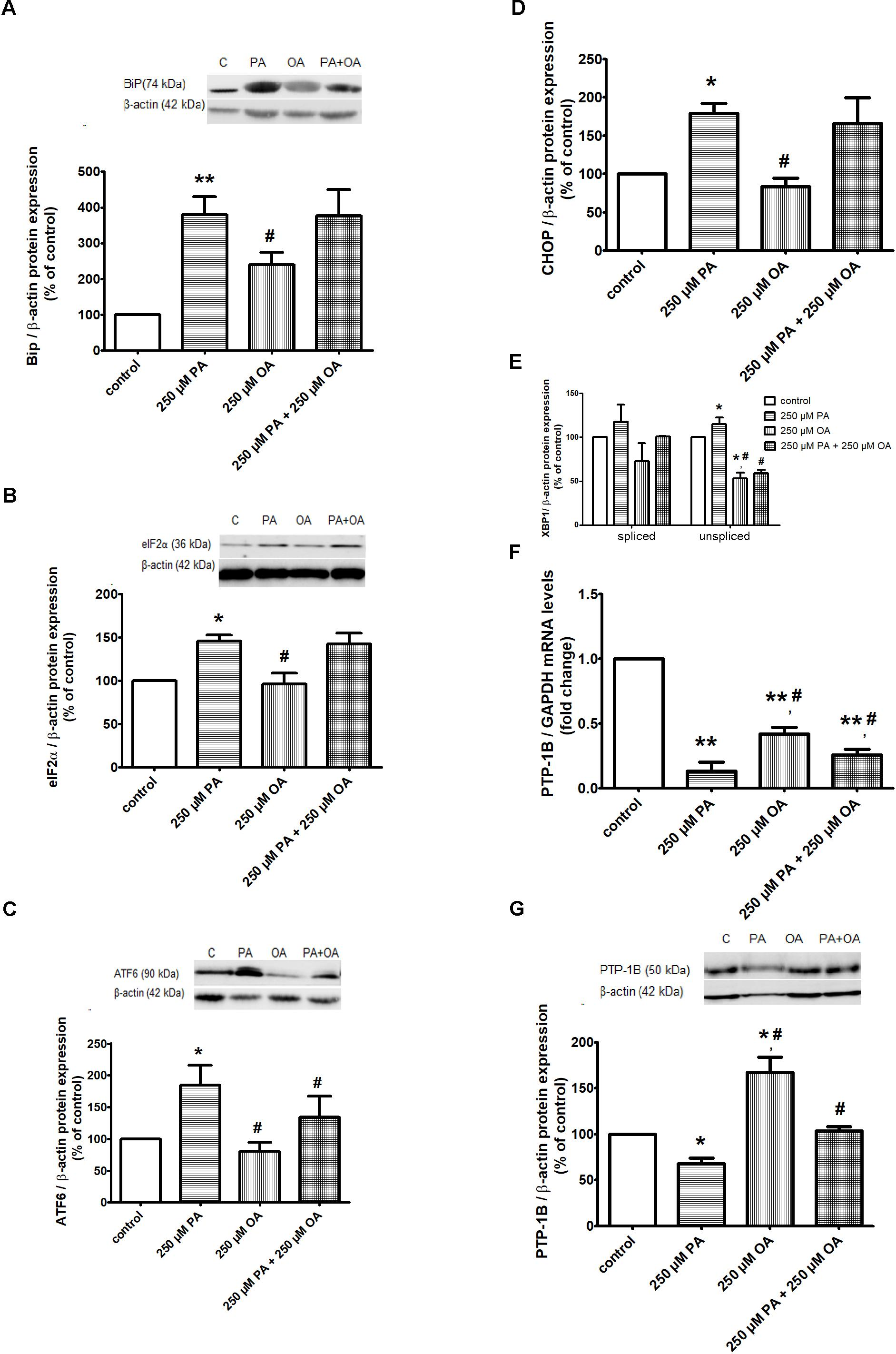 Anamaria Isachi frontiers   the distinct effects of palmitic and oleic acid