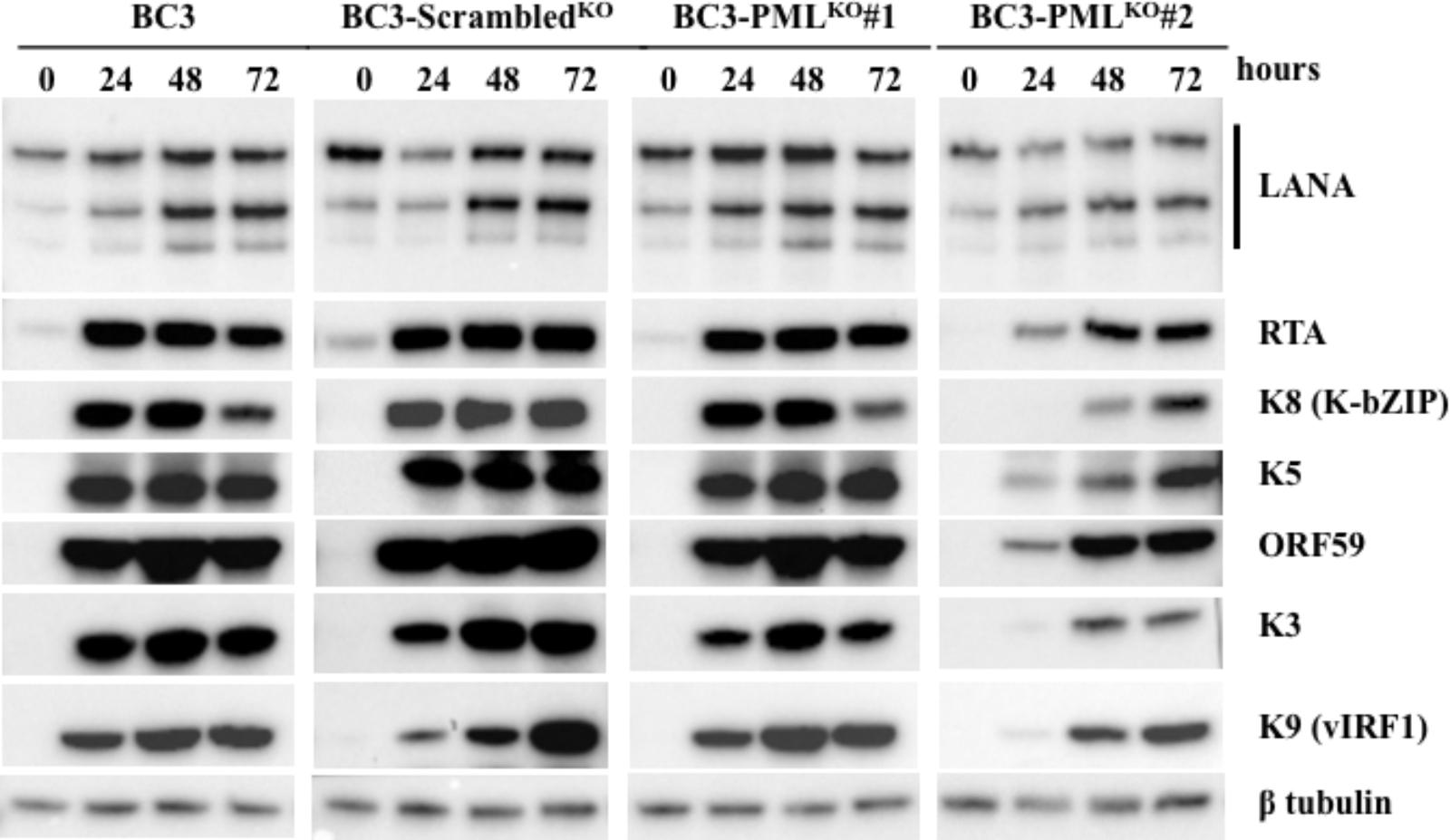 Frontiers | Importance of Promyelocytic Leukema Protein (PML) for