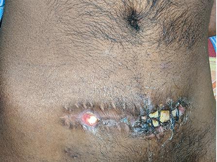Frontiers | Complications of Decompressive Craniectomy ...