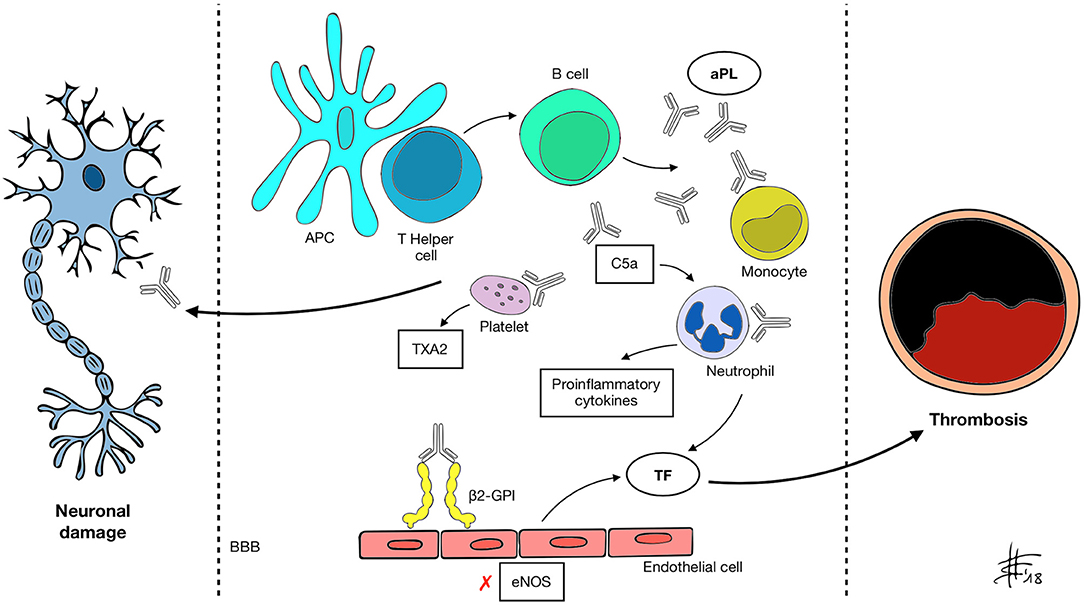 Frontiers | Antiphospholipid Syndrome and the Neurologist
