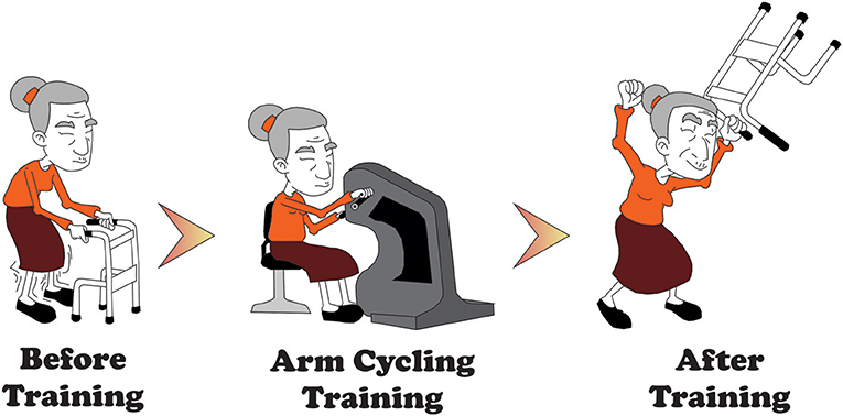 Figure 2 - A cartoon of the improvements that can occur when someone trains their arms after a stroke.