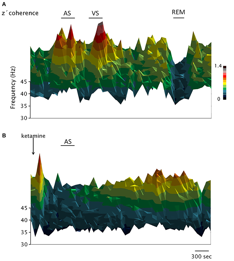 Frontiers | EEG 40 Hz Coherence Decreases in REM Sleep and