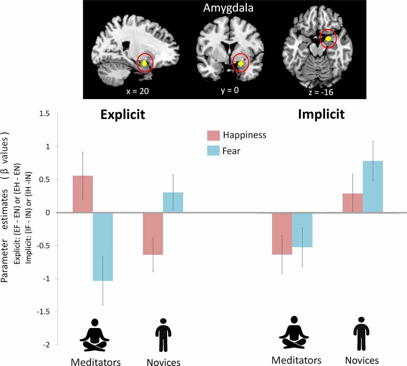Frontiers Atypical Anxiety Related Amygdala Reactivity And Led Rocker Switch Wiring Diagram Http Wwwemotioninccom Switchp