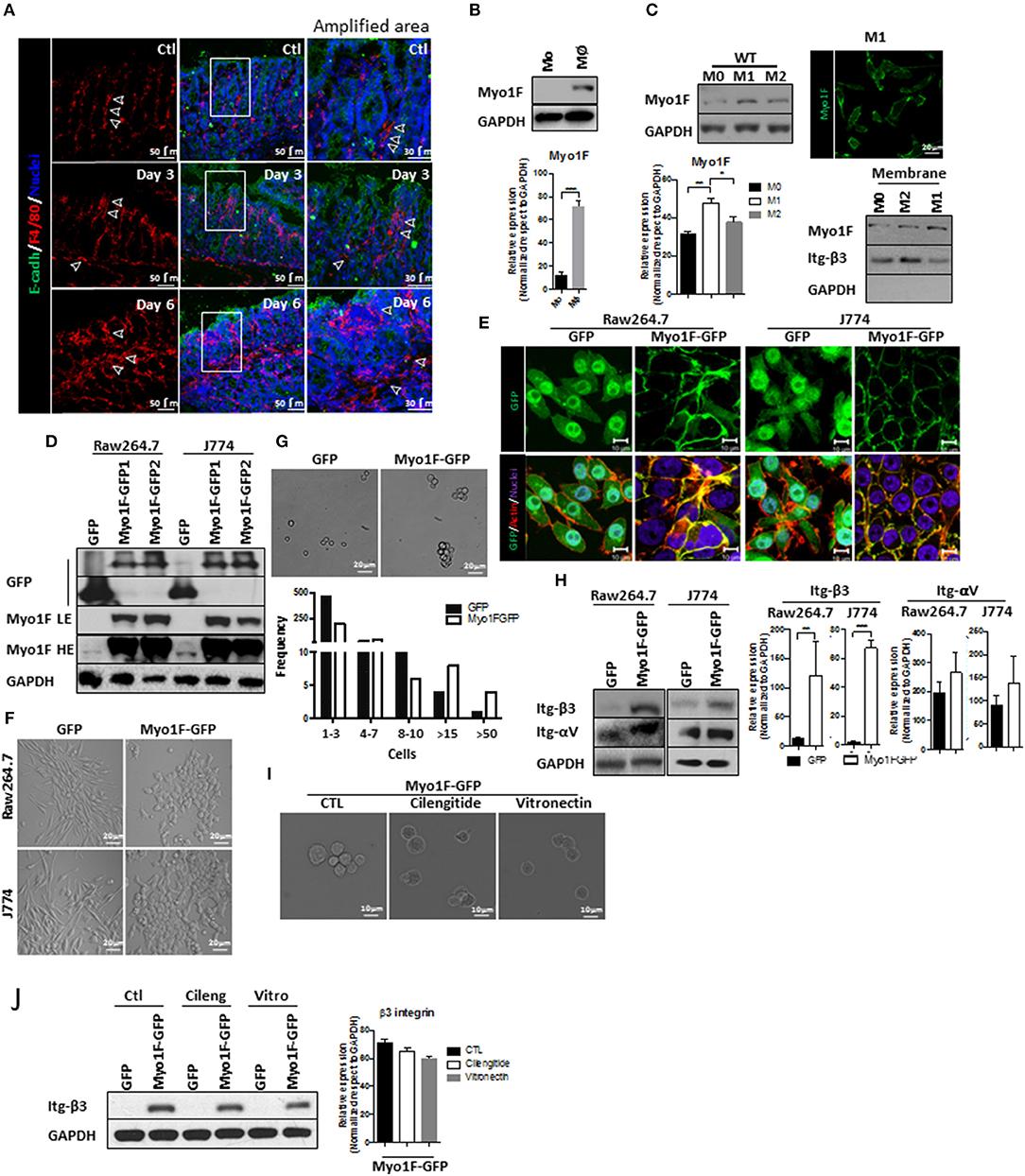 Frontiers   Myosin 1F Regulates M1-Polarization by ... on