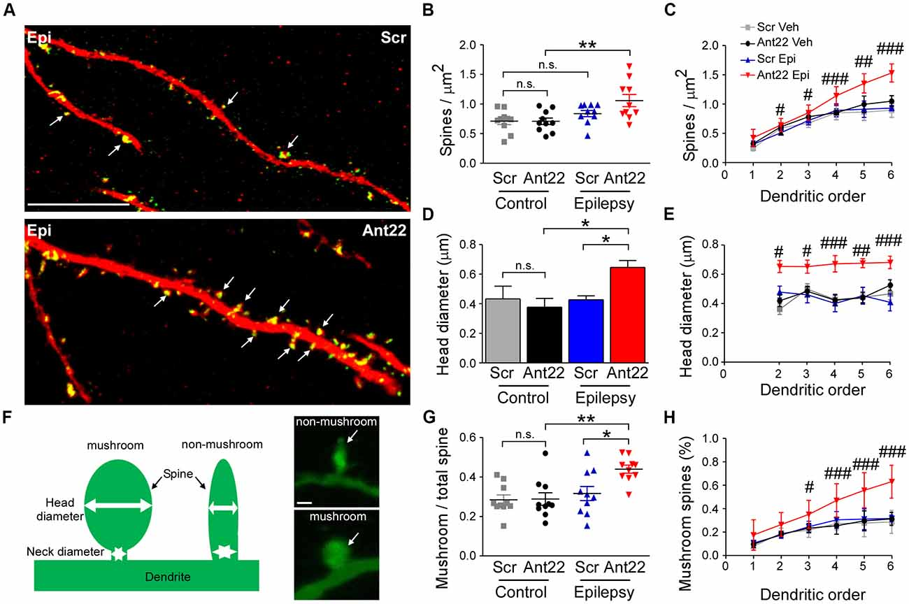 Frontiers | MicroRNA-22 Controls Aberrant Neurogenesis and Changes