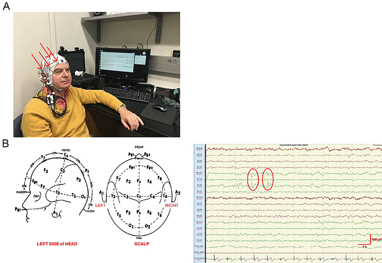 Figure 1 - Measuring brain activity with electrodes.
