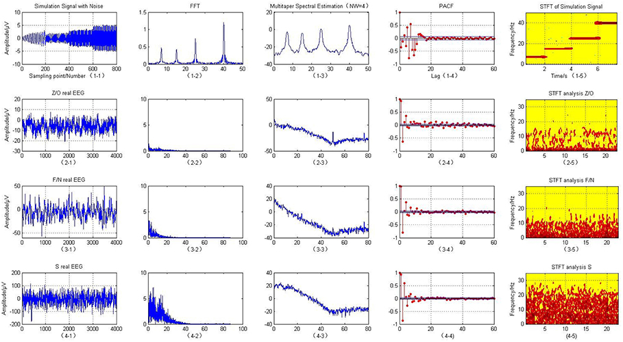 Frontiers | Detection Analysis of Epileptic EEG Using a Novel Random
