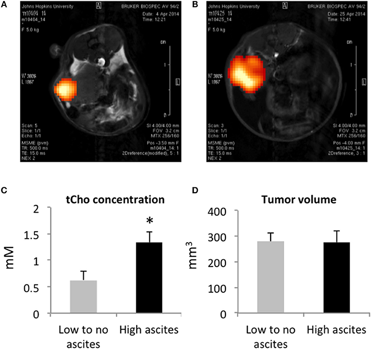 Frontiers Ascites Volumes And The Ovarian Cancer Microenvironment Oncology