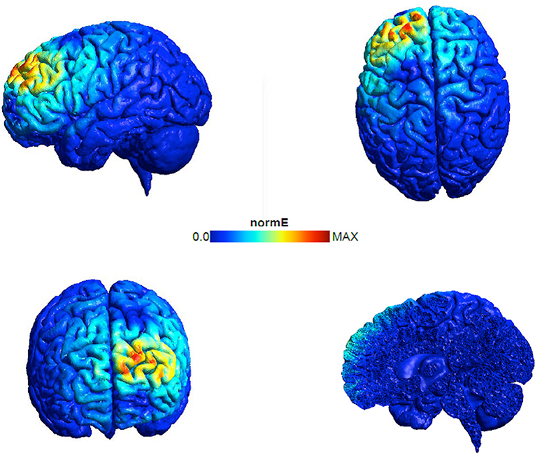 Figure 2 - Diagram of the electrical activity generated in the brain when TMS is applied to the left pre-frontal cortex.