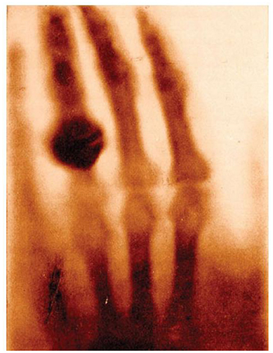Figure 1 - An X-ray of the hand of Anna Ludwig taken on 22 December 1895 by her husband Wilhelm Röntgen.