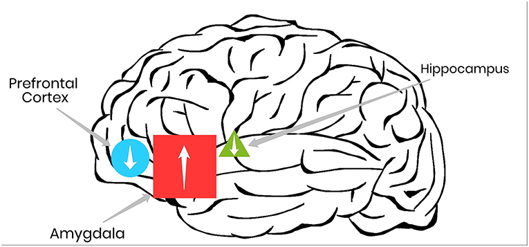 Figure 1 - In PTSD, certain areas of the brain, such as the amygdala, show greater activity (up arrows) compared with healthy brains, whereas other areas, such as the prefrontal cortex and the hippocampus show reduced activity (down arrows).