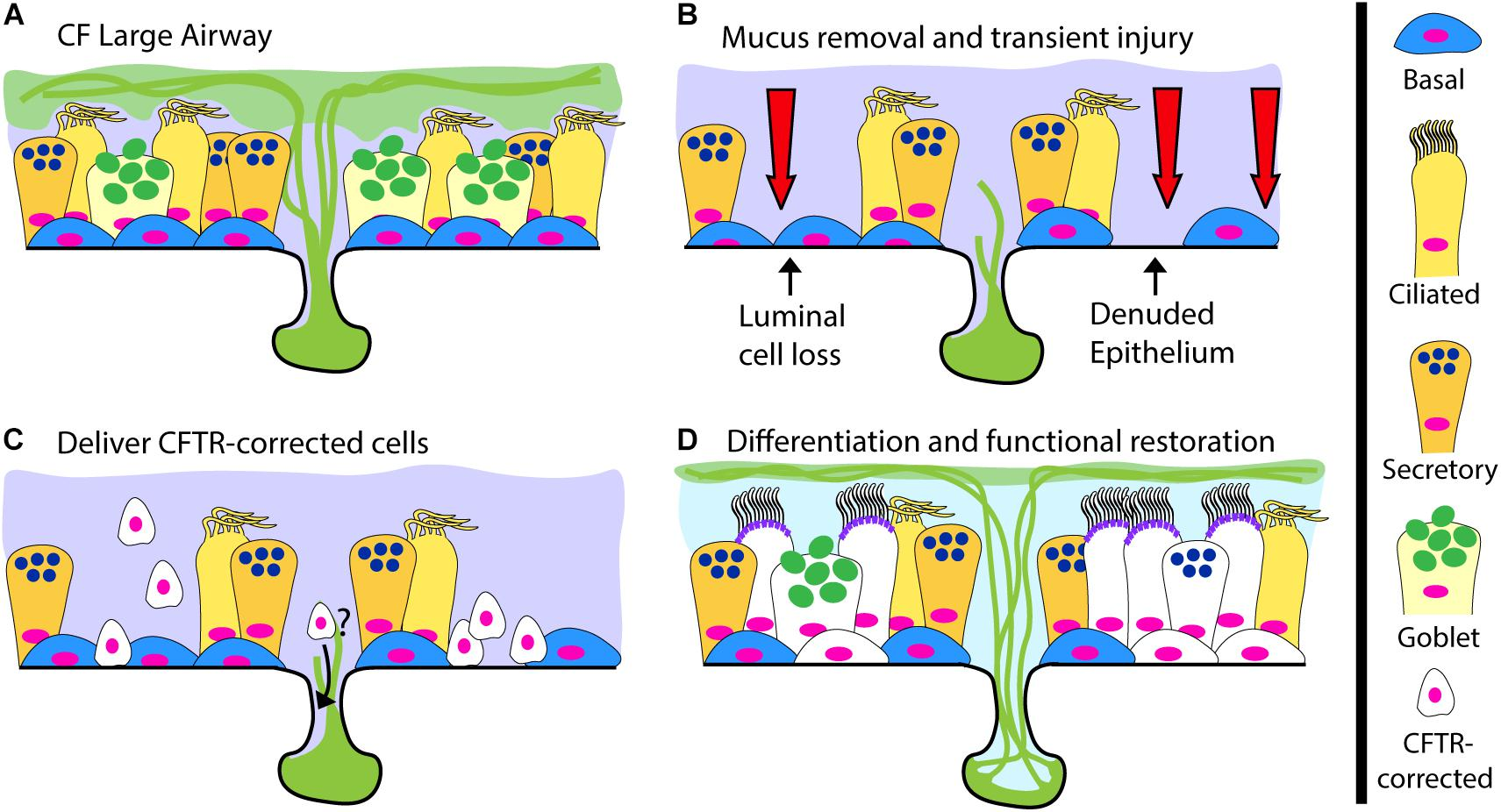Frontiers | Challenges Facing Airway Epithelial Cell-Based