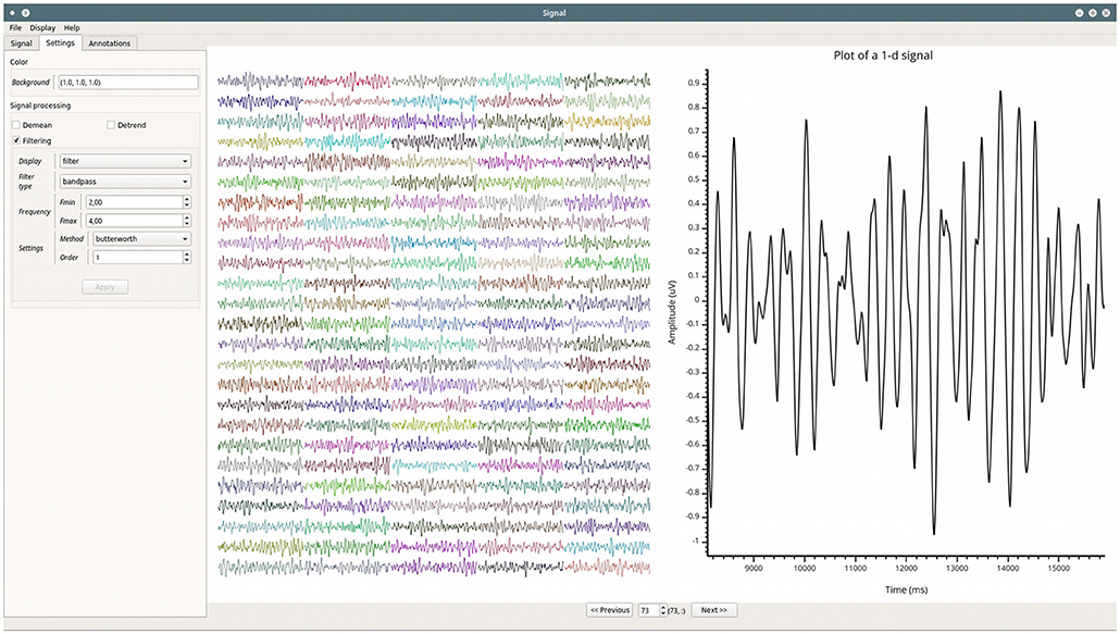 Frontiers | Visbrain: A Multi-Purpose GPU-Accelerated Open