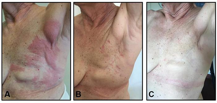 Metastatic cancer and skin