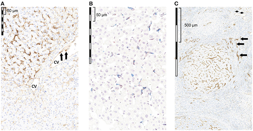 Frontiers | Observational Study of PD-L1, TGF-β, and Immune