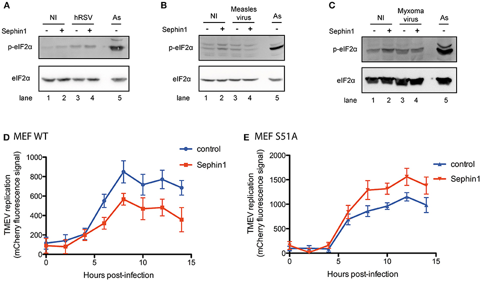 Frontiers   Evaluation of the Antiviral Activity of Sephin1