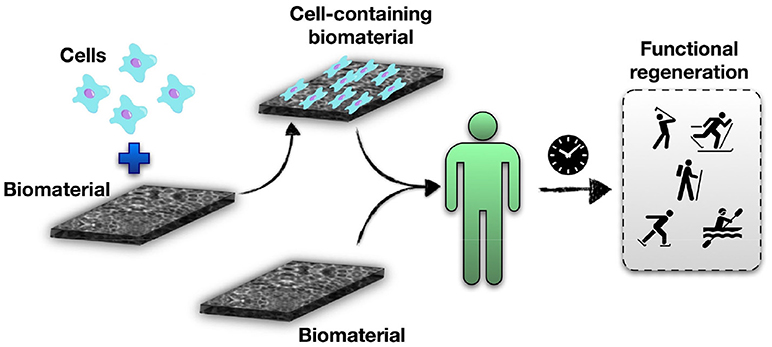 Biomaterials for Organ and Tissue Repair · Frontiers for Young Minds