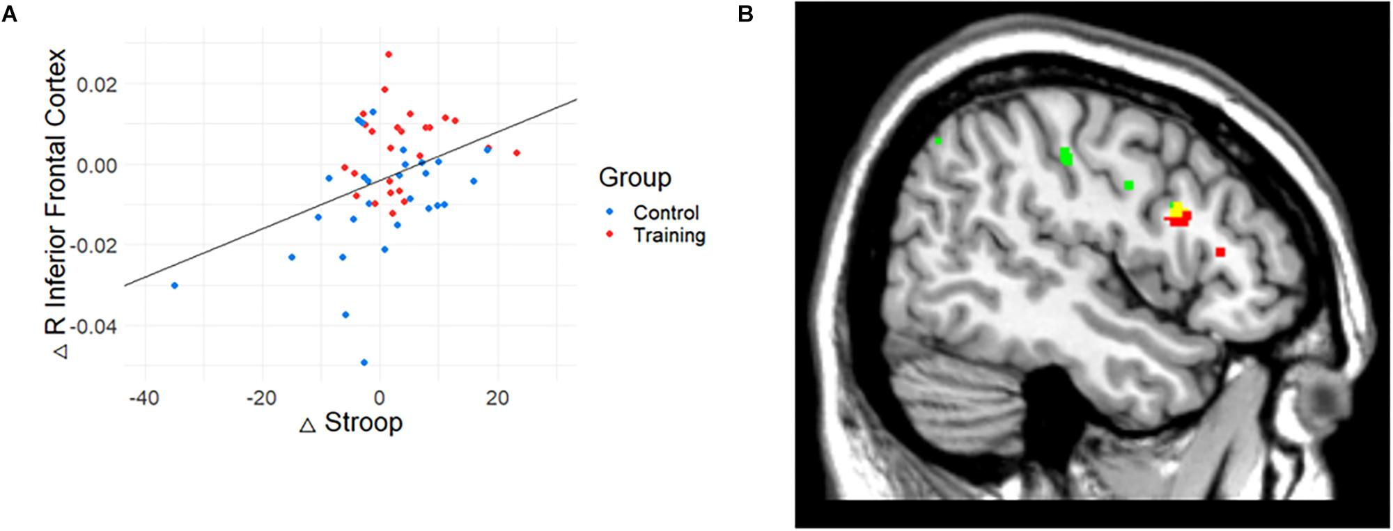 Frontiers | Parallel Changes in Cognitive Function and Gray Matter