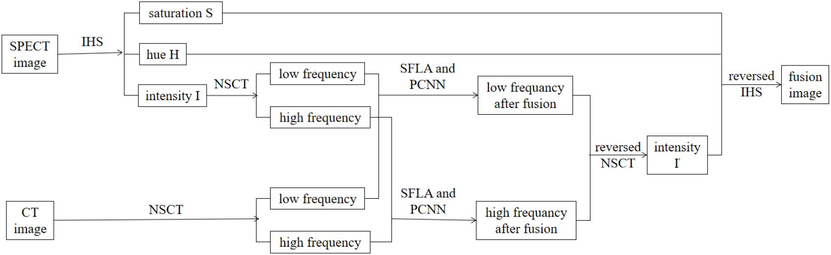 Frontiers | A New Pulse Coupled Neural Network (PCNN) for Brain