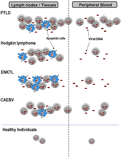 Frontiers   EBV Viral Loads in Diagnosis, Monitoring, and Response ...
