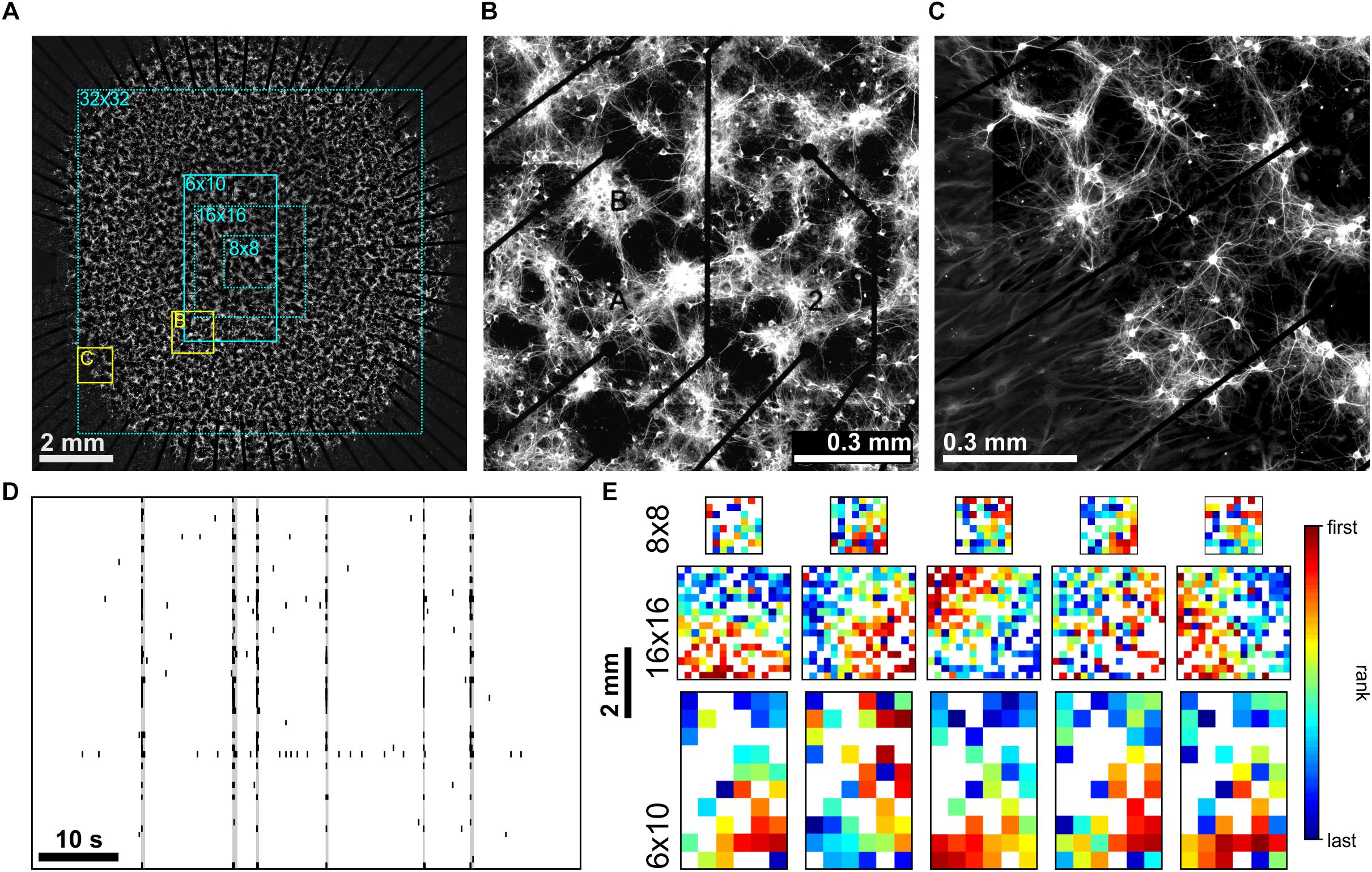 Frontiers Inhomogeneities In Network Structure And Excitability Govern Initiation And Propagation Of Spontaneous Burst Activity Neuroscience