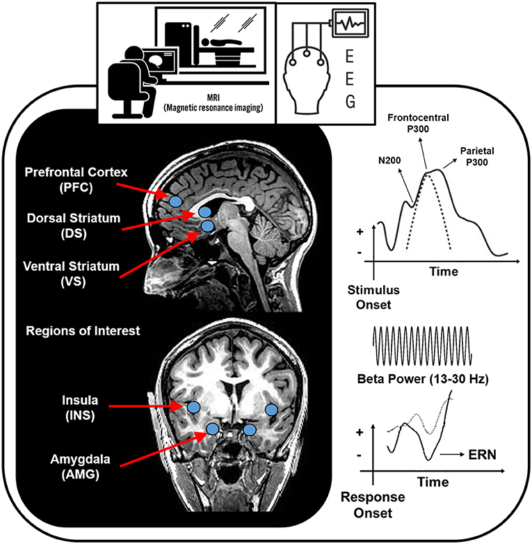 Frontiers | Forging Neuroimaging Targets for Recovery in