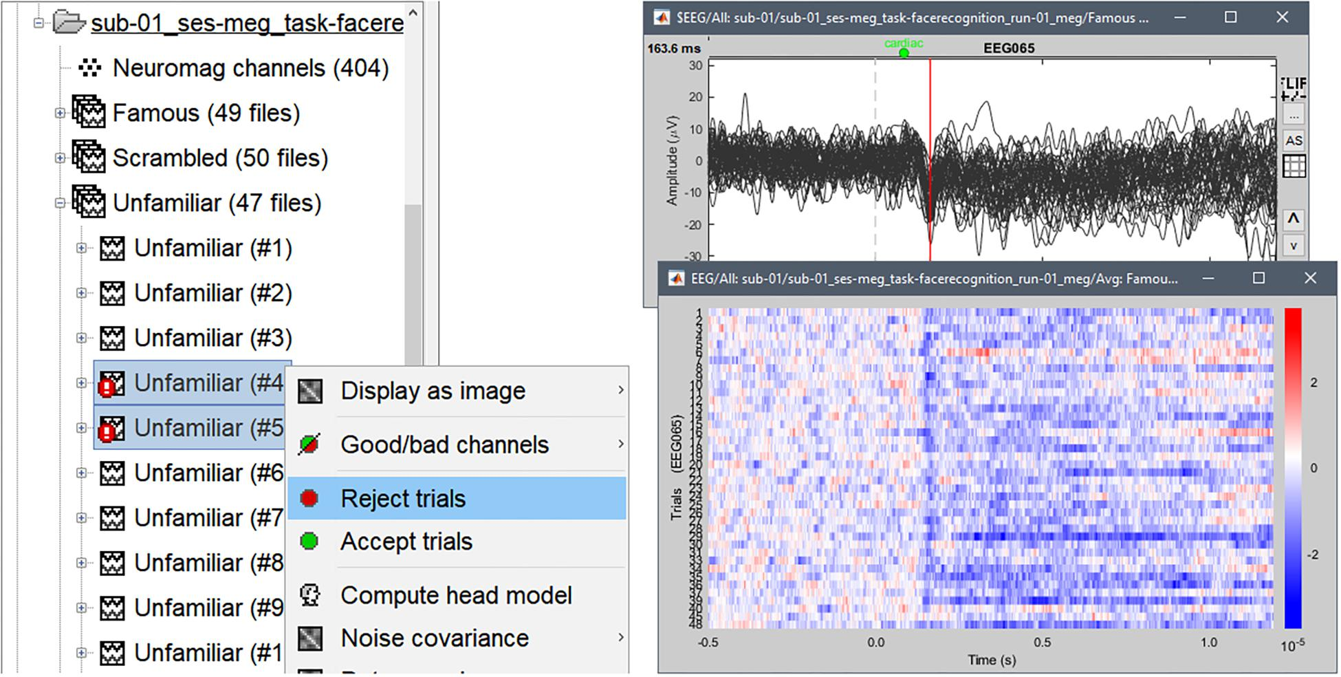 Frontiers | MEG/EEG Group Analysis With Brainstorm